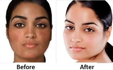 skin bleaching cream before and after